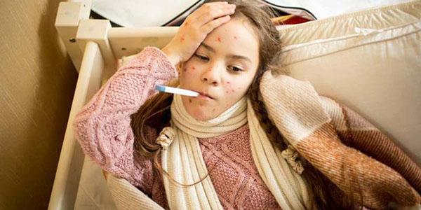 Chăm sóc bệnh nhân mắc bệnh thủy đậu